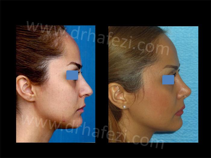 دکتر حافظی جراح زیبایی