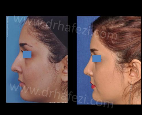 جراحی زیبایی بینی