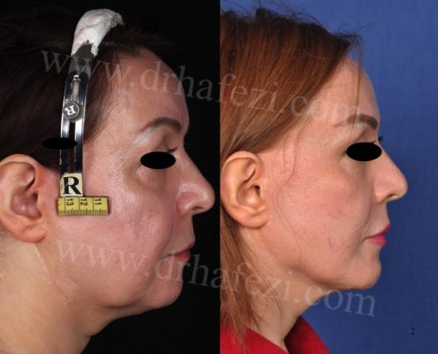 Eyelid surgery