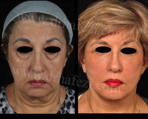face and neck rejuvenation